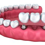 Dental Implants and Bridges: An Effective Solution for Missing Teeth