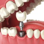 The of History of Dental Implants