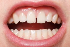 We Can Fix That Smile: Treatments for Chipped Teeth