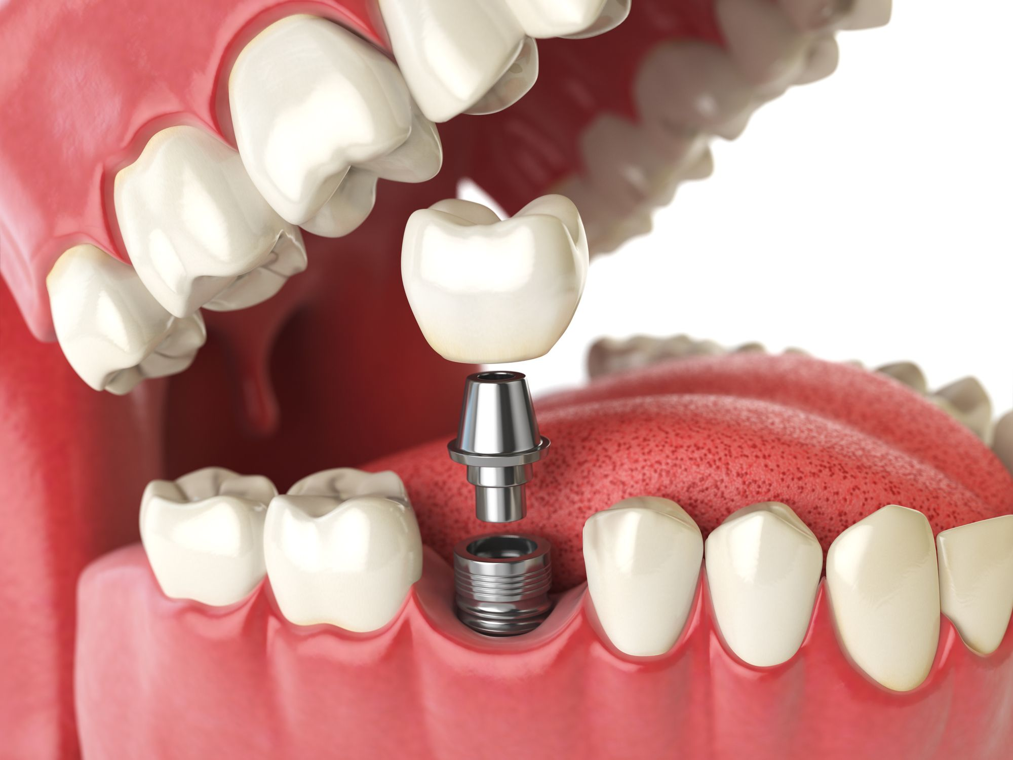 Dental Implants For Missing Molars What Patients Should Know